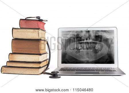 Books And Xray In Laptop