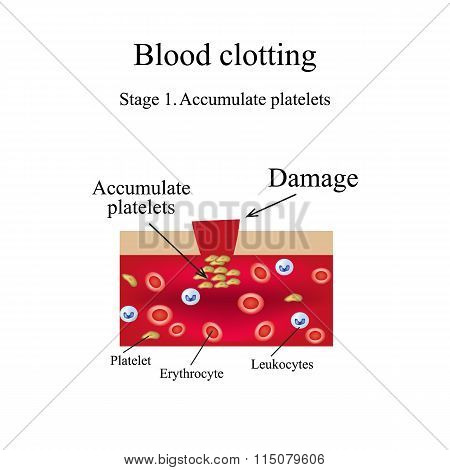 Blood clotting. Stage 1. Infographics. Vector illustration