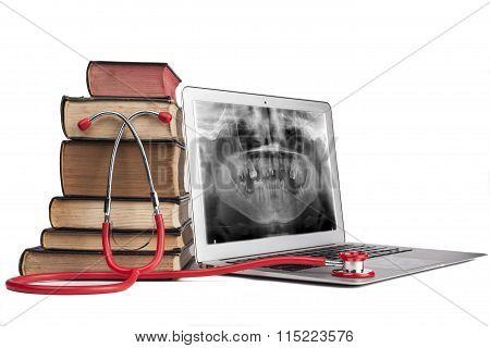 Xray On Laptop