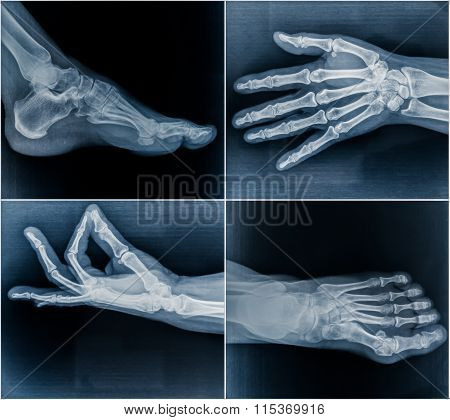 50 Year Old Woman's X-ray Scans From Hands And Feet