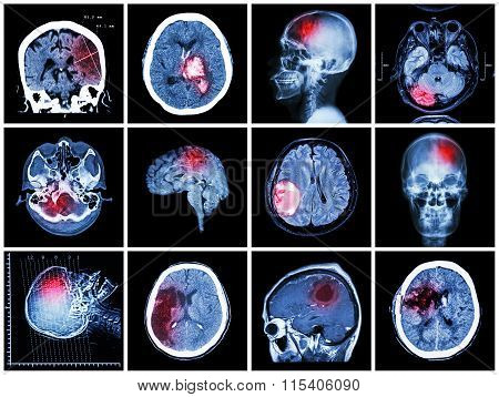 Collection Of Brain Disease