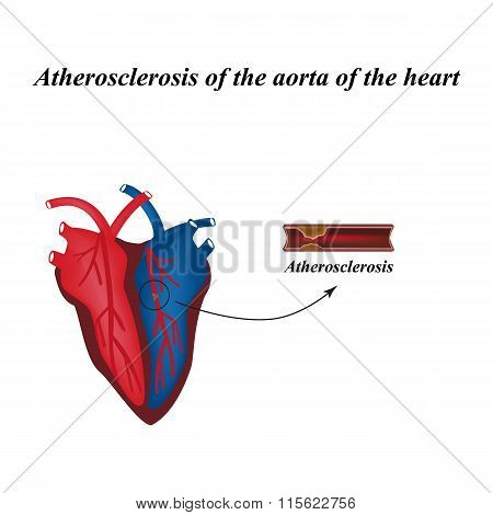 Atherosclerosis of the arteries of the heart. Infographics. Vector illustration