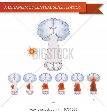 Infographic mechanism of central sensitization