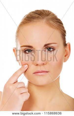 Unhappy young woman touching her pimple