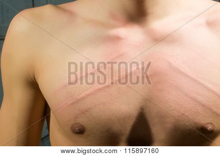 Male Chest With Scores