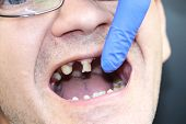 The Man Has Rotten Teeth, Teeth Fell Out, Yellow And Black Teeth Hurt. Poor Teeth Condition, Erosion poster