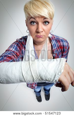Woman showing her broken arm