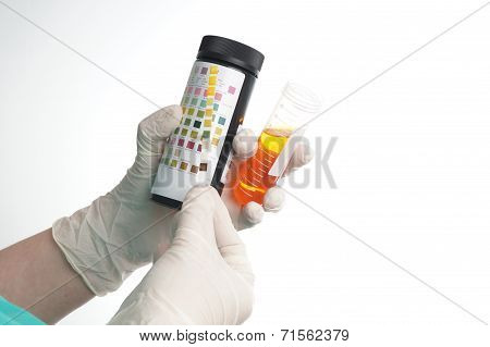 Urine Test Stripes Examined By A Nurse