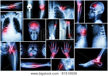 Collection X-ray multiple disease