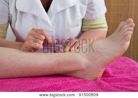 Woman acupuncturist