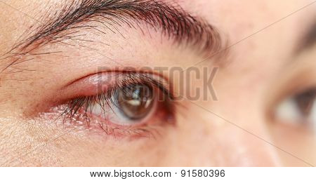 Right Upper Eye Lid Abscess
