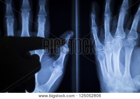 Wrist Hand Injury Xray Scan