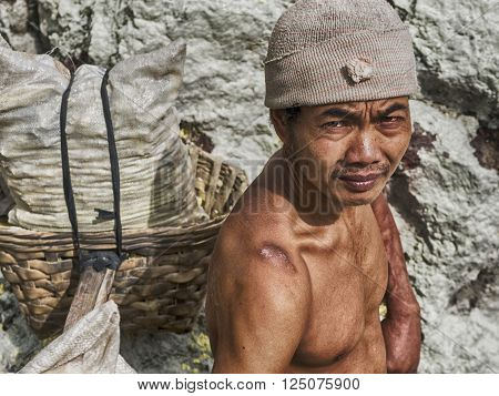 Ijen Crater, Indonesia - May 25, 2013: Sulfur miner showing his shoulder scars inside the crater of Kawah Ijen volcano in East Java, Indonesia.