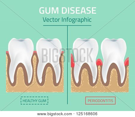 Teeth infographic. Gum disease stages. Editable vector illustration in modern style. Medical concept in natural colors on a light green background. Keep your teeth healthy