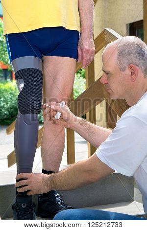 Physiotherapist Adjusting Prosthetic Leg