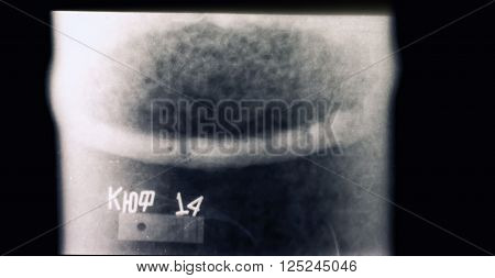 X-ray Of A Welded Seam Of The Pipeline