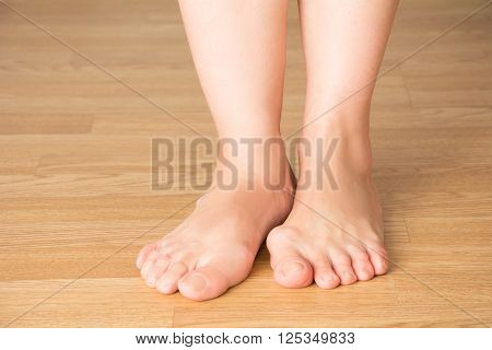 Hallux valgus bunion in foot pain in legs on a wooden background