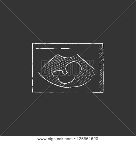 Fetal ultrasound. Drawn in chalk icon.