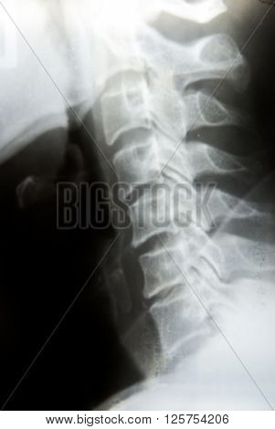 X-Ray Image Of Human neck for a medical diagnosis