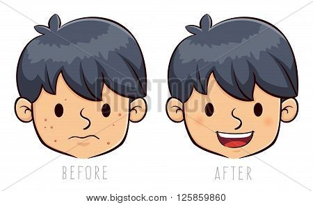 Vector stock of a boy face with acne problem before and after
