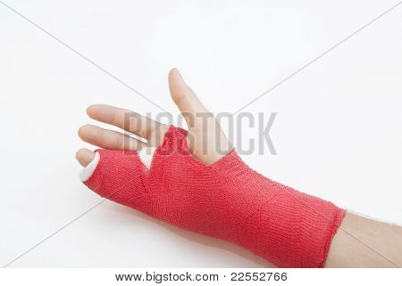 Bandaged Arm With Broken Finger