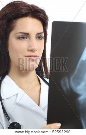 Beautiful Doctor Woman Looking A Radiography Of A Knee