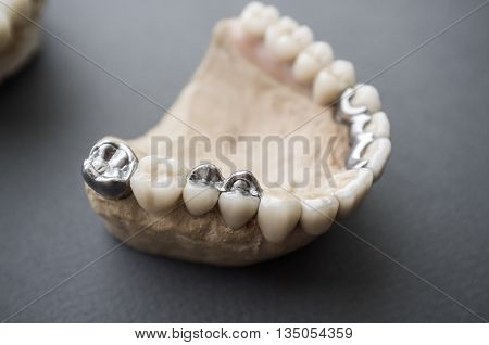 Human jaw layout with ceramic and metal dentures. Front view on plaster jaw with dentures. Example of dental prosthesis work