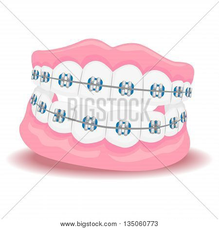 Vector Illustration of Dentures Teeth with Braces
