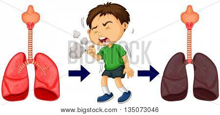 Boy smoking and lung cancer illustration