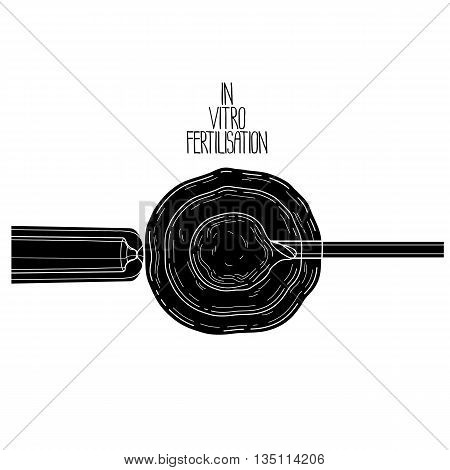In vitor fertilisation. Artificial insemination. Graphic medical illustration. Vector design isolated on white background