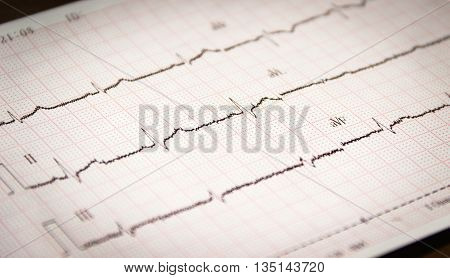 a printed copy of the ECG of the patient