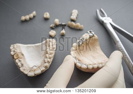 Dentistry Prosthesis Plaster Jaw Equipment Dentures Practice Concept