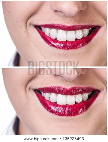 Lips before and after filler injections isolated on white. Lips augmentation concept.