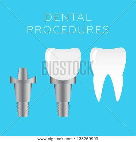 Stomatology and dental procedures vector illustration eps 10