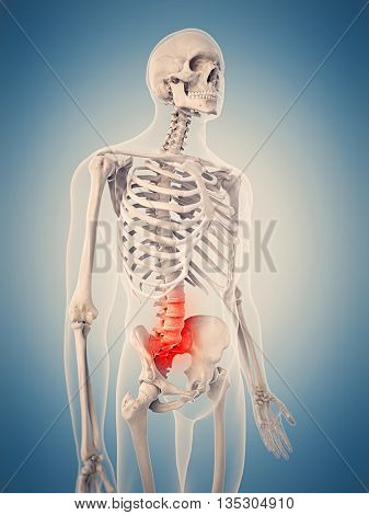3d rendered, medically accurate 3d illustration of the painful lumbar spine