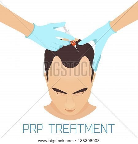 Platelet rich plasma injection procedure for men. PRP treatment process. Male hair loss treatment infographics. Meso therapy. Hair growth stimulation. Vector illustration.