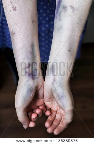 Domestic violence concept. Abused woman shows her hands with bruises.