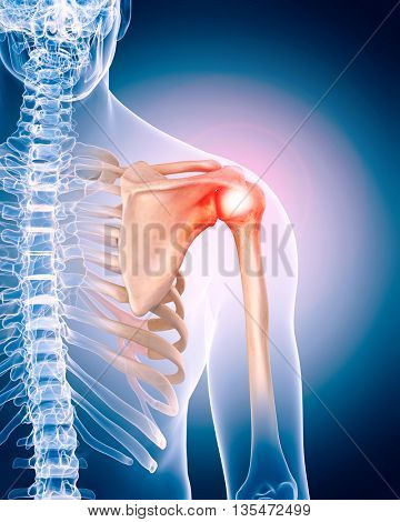 3d rendered, medically accurate 3d illustration of painful shoulder