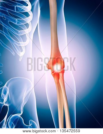 3d rendered, medically accurate 3d illustration of painful ellbow