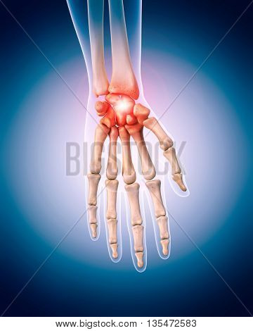3d rendered, medically accurate 3d illustration of the painful hand