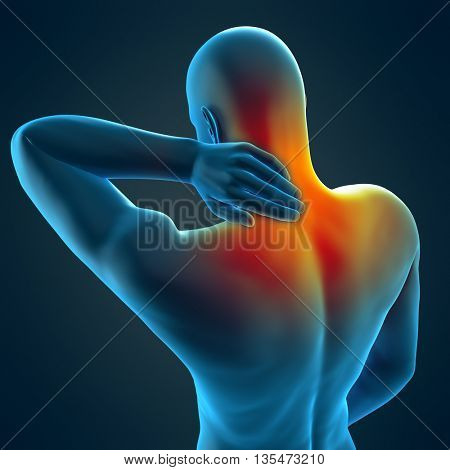 3d rendered, medically accurate 3d illustration of neck pain