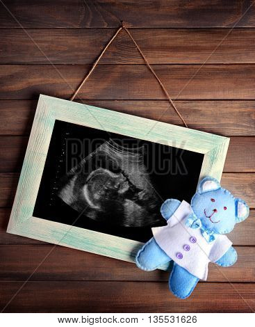Vintage frame with ultrasound scan of baby on wooden background