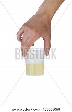 jar of urine tests in a hand