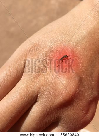 Mosquito sucking blood on human skin with red spot