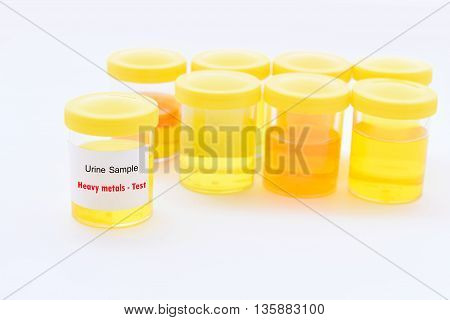 Cup with urine sample for heavy metals test
