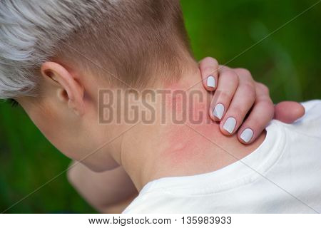 Girl with blond hair, sitting with his back turned and scratching bitten, red, swollen neck skin from mosquito bites in the summer in the forest.  Close-up up of visible insect bites. Irritated skin.