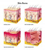 picture of sunburn  - medical illustration of the formation of skin burns - JPG