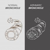 picture of bronchus  - World Asthma Day concept with illustration of asthmatic bronchitis - JPG