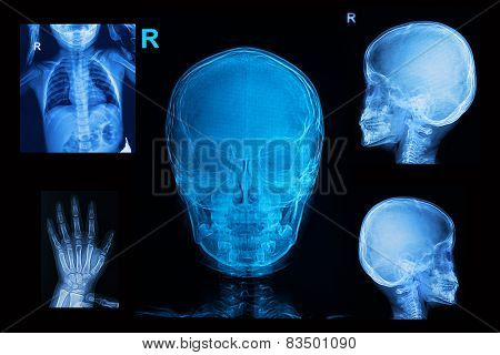 Collection Of Children X-rays  Image Show Skull  Chest And Hand Image