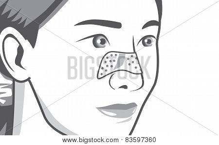 Closeup shot acne pads on nose
